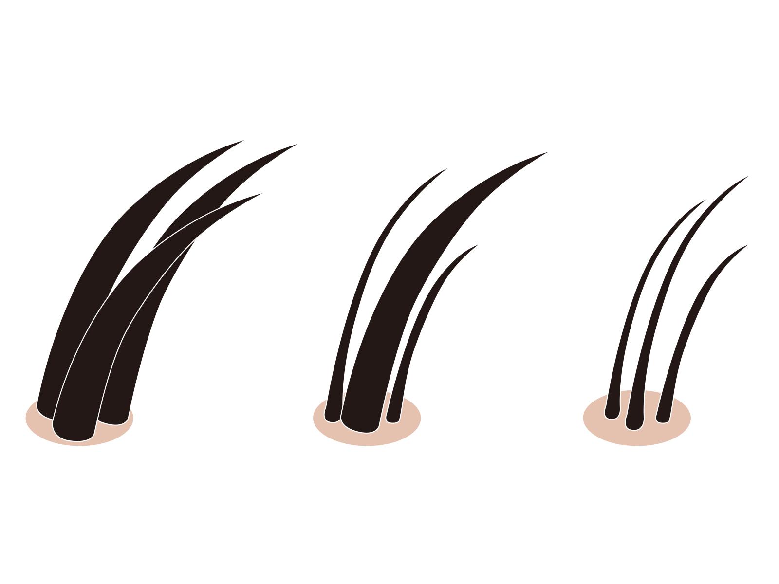 髪の毛毛穴イラスト