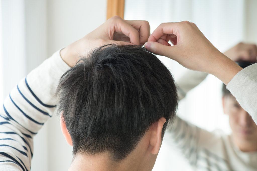 男性の抜け毛