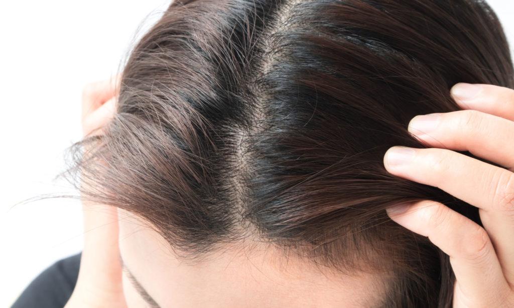 頭皮のタイプ
