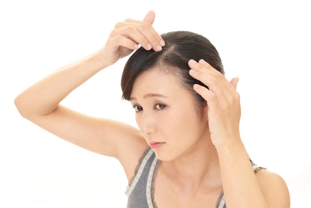 女性の薄毛