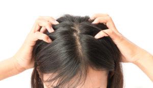 頭皮の毛穴汚れ